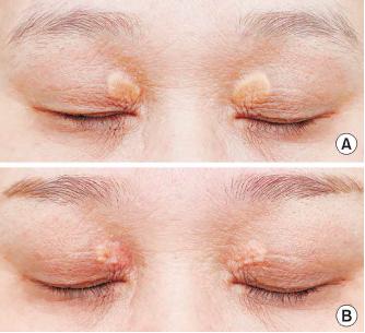 Lasern xanthelasmen Xanthelasma Treatments